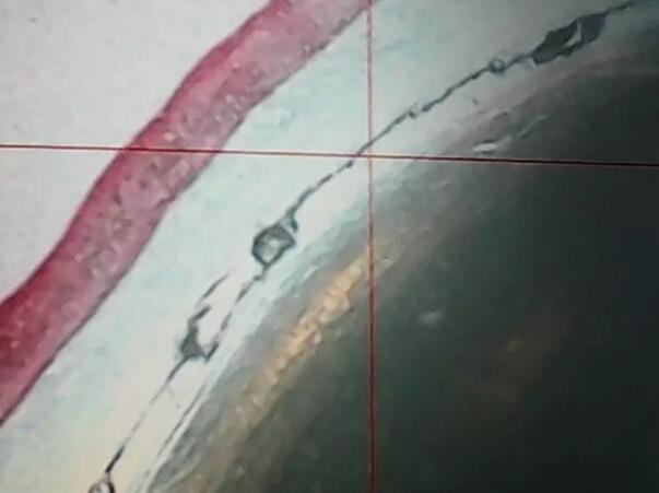 图2 R角热裂纹形貌